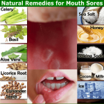 12 Natural Remedies for Mouth Sores that Work