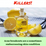 Teen Acne: Types, Causes and Treatment